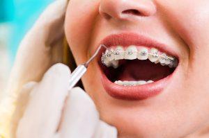 Прави Зъби – Не Става Дума Само за Хубавата Усмивка! Какви са Медицинските Ползи Които Носи Терапията с Брекети?