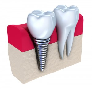 1.Dental.Implants