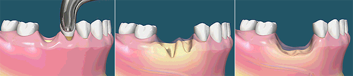 2.Dental.Implants