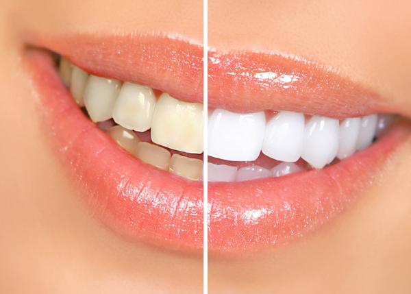 2.Teeth