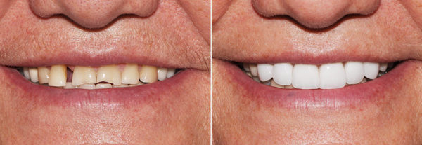 Before.After.Dental.Implants.Smile.3