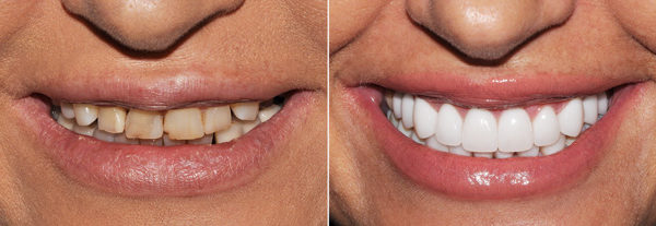 Before.After.Dental.Implants.Smile.4