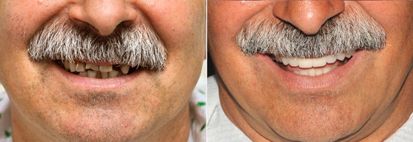 Before.After.Dental.Implants.Smile.6