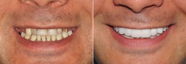 Before.After.Dental.Implants.Smile.7