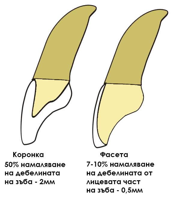 Veneer-Crown(1)