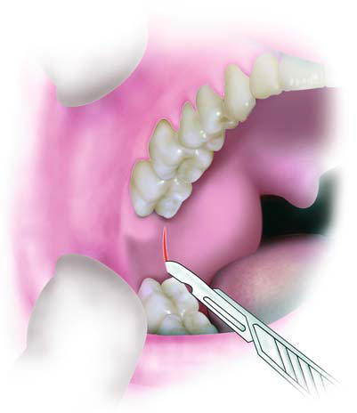 4.Incisions.dissection.of.gums