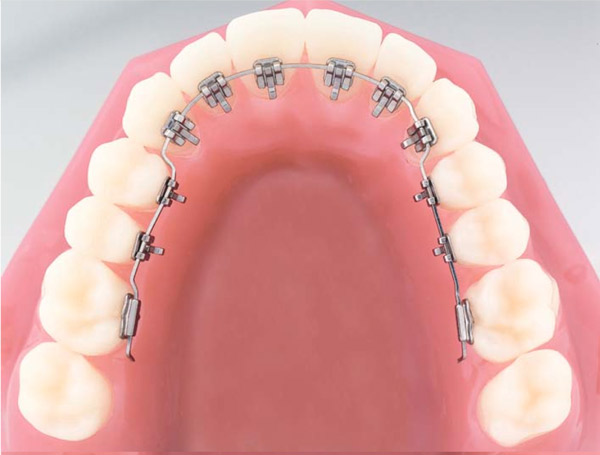 Brackets.Internal