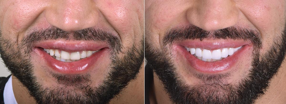 Д-р Гайс Dr. Gais Зъбни Импланти Фасети Усмивка Лазерно избелване на зъби