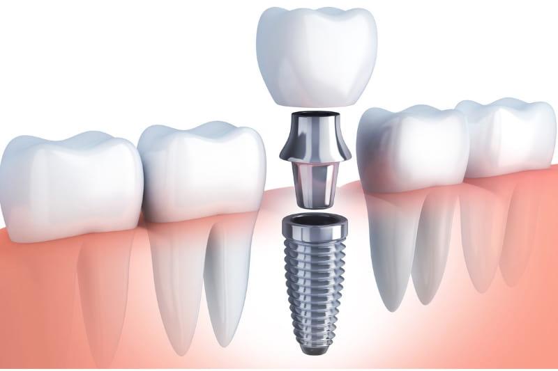 загуба на зъб