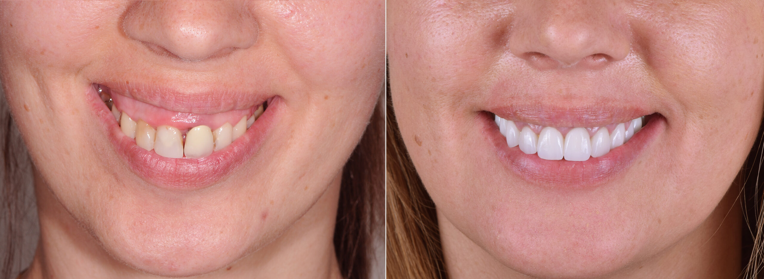 Smile Before After Усмивка Преди След