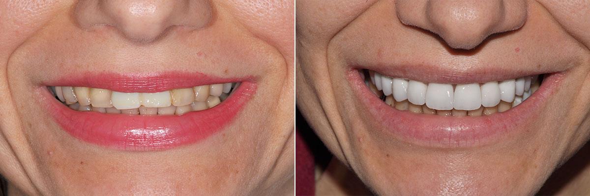 Зъбни Импланти Фасети Усмивка Лазерно избелване на зъби