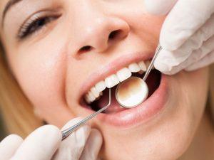 почистване на зъби