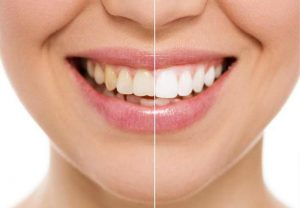 Отговори на Всички Ваши Въпроси за Избелването на Зъби